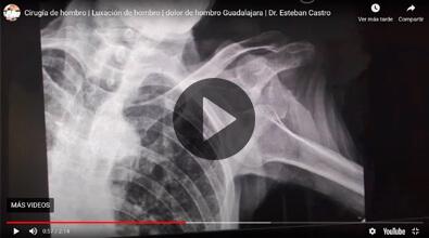 Luxación de hombro Dr. Esteban Castro Contreras - Traumatólogo y Ortopedista