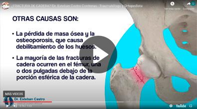 Fractura de cadera - Traumatólogo y Ortopedista
