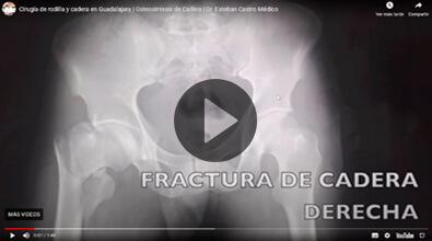 Lesión de Rodilla - Traumatólogo y Ortopedista