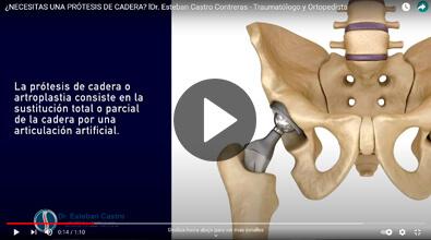 Prótesis de cadera - Traumatólogo y Ortopedista